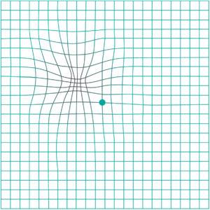 Amslerova mřížka - deformace