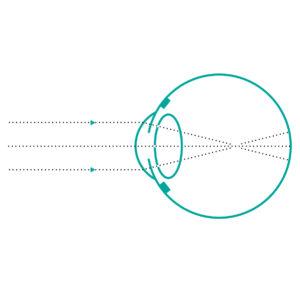 krátkozrakost - hypermetropie